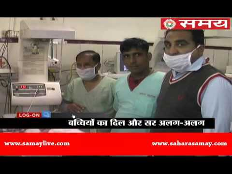 Twin girls born attached from torso in Agra