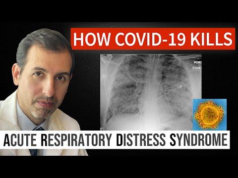 How Coronavirus Kills: Acute Respiratory Distress Syndrome (ARDS) & COVID 19 Treatment