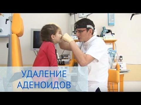 Операция по удалению аденоидов в Детской клинике ЕМС