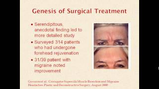 Internal Medicine Grand Rounds:  Surgical Treatment Of Migraine: A New Approach To An Old Problem