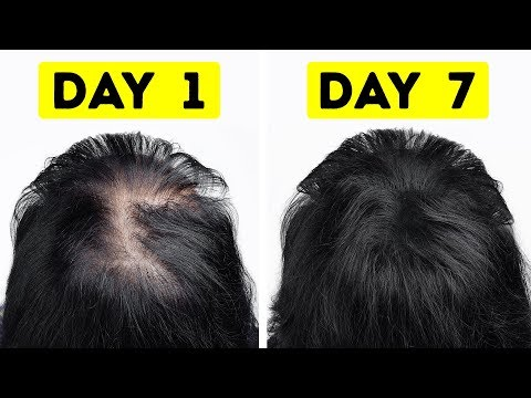 I Went from Thin to Thick Hair in Just a Week - Thời lượng: 7 phút, 42 giây.