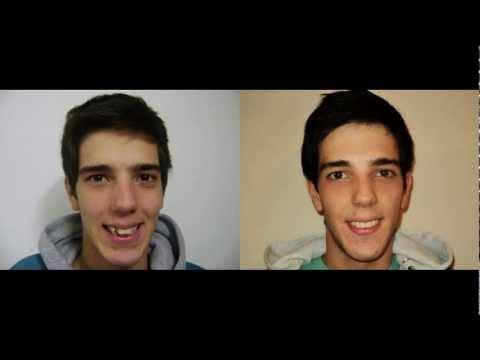 Ortodoncia: antes/después