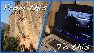 Climbing Finger Injury - A2 Pulley Injury Ultrasound Scan by The Climbing Nomads