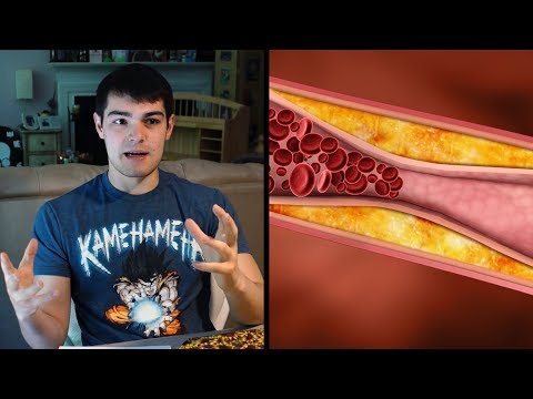 Oxidized Cholesterol  and Oxidized Fat | Atherosclerosis and Effects On The Body