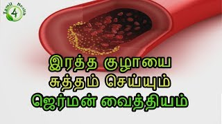 arteries heart of darkness in tamil,heart failure in tamil,heart disease in tamil,,arteries of the heart in tamil,arteries of the body in tamil,arteries in the neck in tamil,heart in tamil,heart attack in tamil,இதயம் பலம் பெற,இதய குழாய் அடைப்பு,heart attack symptoms in tamil,heart of darkness in tamil,heart failure in tamil,heart disease in tamil,