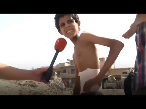 Το σκελετωμένο παιδί της Μοσούλης