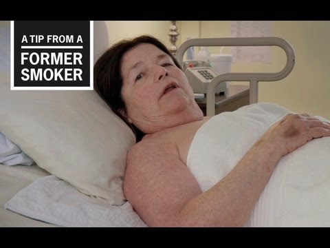 Smoking contributes to one in five strokes in the United States. In this TV ad for CDC's Tips From Former Smokers campaign, Suzy talks about losing her independence after smoking caused her to have a stroke.