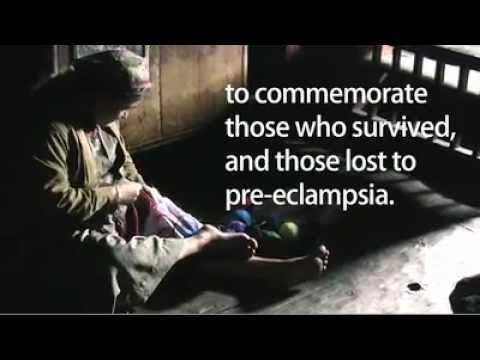 Eclampsia Across the Globe (Mahendi Partnership)