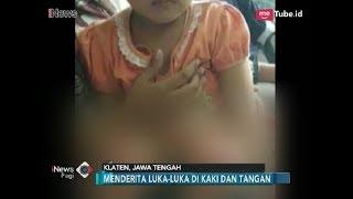 Video Viral!! Video Ibu Seret Anak dengan Motor, Kondisi Anak Bikin Merinding - iNews Pagi 10/02 MP3, 3GP, MP4, WEBM, AVI, FLV Februari 2018