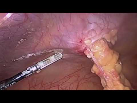 Video-Laparoscopic Repair of Omental Hernia
