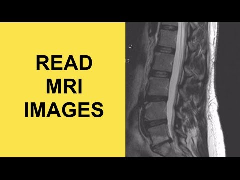 How to read an MRI of the lumbar spine for herniated discs (SCIATICA CAUSE)