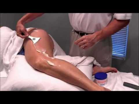 Trochanteric Bursitis Exercises Clinic