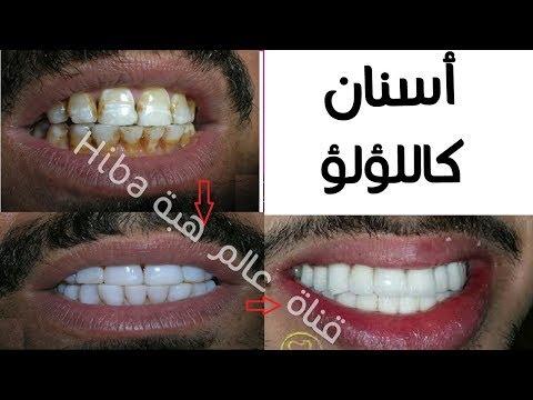 العرب اليوم - شاهد| خلطات طبيعية لتبييض الأسنان خلال دقائق فقط