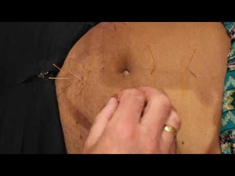 Abdominal Acupuncture treatment of back and hip pain with referred Sciatica