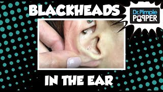 A blackhead is also called an open comedo (single for comedone), and it is a clogged pore in the skin that is open to the air. Keratin (skin protein) and sebum (oil) combine to block the pore. They are often found on the face and trunk. but they can be found anywhere on the body.  Blackheads are not clogged with dirt, but it is the exposure to air that causes oxidation turning the internal contents black. They can be extracted using a comedone extractor.  I usually use an 11 blade (a blade that comes to a sharp point) and a Shaumberg type comedone extractor. To buy your own Official Dr. Pimple Popper Comedone Extractor, click here:http://www.drpimplepopper.com/shopTo learn more about my skincare line - SLMD Skincare - click here:www.slmdskincare.comSubscribe to my Dermatology educational channel, Dr Pimple Popper University!  Link is here: https://www.youtube.com/channel/UCvaD01Jb_ruxsAcVqVmTHzQFor more content, exclusive content, and of course to get more Dr. Pimple Popper schwag, visit us at www.drpimplepopper.com!Instagram:       @DrPimplePopper for 24/7 pops      @DrSandraLee for my work, my life, my popsFacebook: facebook.com/DrPimplePopperTwitter: @SandraLeeMDSnapchat: drpimplepopperPeriscope: Dr. Sandra LeeYou can watch my TV appearances here: https://www.youtube.com/channel/UCOixDRVQAsKe4STSuWU8U0QThis video may contain dermatologic surgical and/or procedural content. The content seen in this video is provided only for medical education purposes and is not intended to be a substitute for professional medical advice, diagnosis, or treatment.