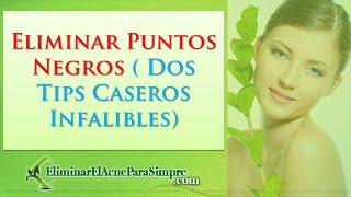 Download Lagu Eliminar Puntos Negros ( Dos Tips Caseros Infalibles) Mp3