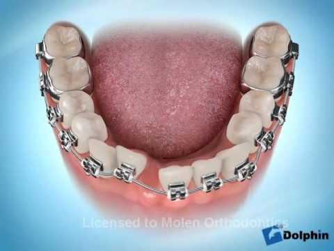 Extraction une incisive mandibulaire