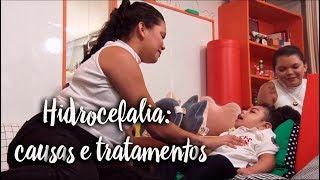 Hidrocefalia: causas e tratamentos