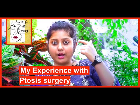 My Real-life Experience Undergoing Eyelid (Ptosis) Surgery !