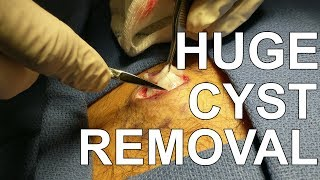 Back Cyst Removal - Dr. Paul Ruff | West End Plastic Surgery