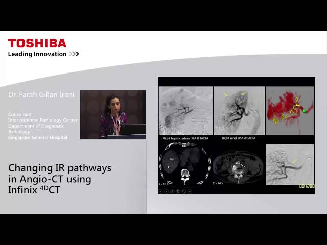 Changing IR Pathways in Angio – CT Using Infinix 4D CT