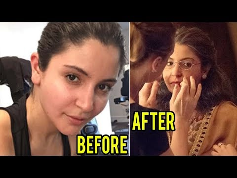 Anushka Sharma UNBELIEVABLE Old Woman Look For ZER