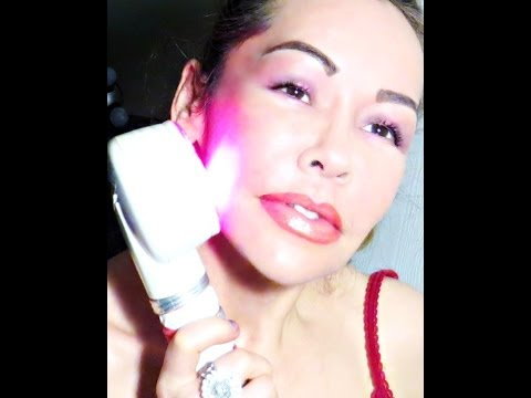 Inducing COLLAGEN into layers of skin with RED LIGHT/RADIO FREQUENCY