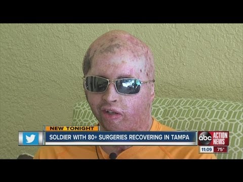 Iraq - Second most wounded Iraq soldier recovering in Tampa.