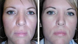 Reduce Wrinkles YouTube video