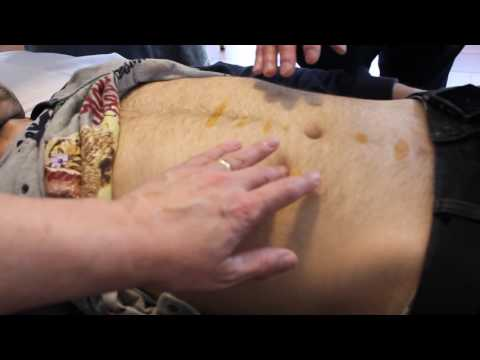 Abdominal Acupuncture for upper back and Neck pain