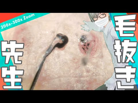 188 [200x Zoom] Every hair is unique Dr. tweezers 毛抜き先生の角栓や毛根 видео