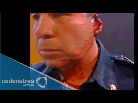 Joven muerde a policía y… ¡le arranca la oreja!