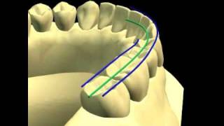MANDIBLE - OCCLUSION