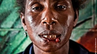 Matthew Blackwell interviews Helena Michael who had her face partially eaten by a serial cannibal in Port Moresby, Papua New...
