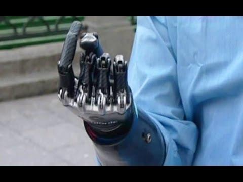 Человек с бионической рукой в Москве.