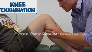 Knee Examination - OSCE Guide