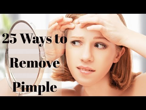 how to remove acne pimple naturally