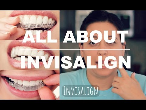 INVISALIGN REVIEW | HOW IT WORKS AND WHAT TO EXPECT