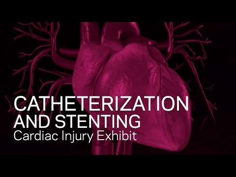 הדמיה של פעולת צינתור לב והחדרת סטנטים