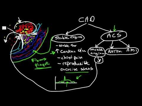 Pathophysiology of Coronary Artery Disease