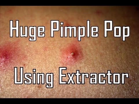 Huge Pimple Pop Using Extractor – Back Zit