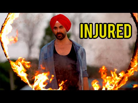 Akshay Kumar's Leg Caught Fire While Shooting for