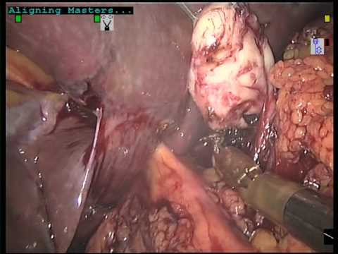 Schwannoma of Haller 's tripod. Robotic excision