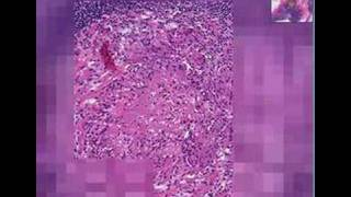 Histopathology Lymph node --Tuberculosis