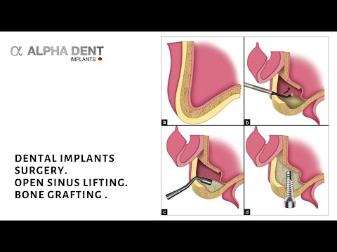 Dental implants surgery. Open sinus lifting. Bone grafting . Surgery procedure by Dr Sobolevski