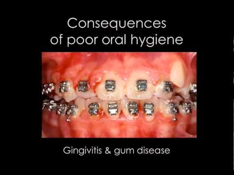 Consequences of Poor Oral Hygiene Braces