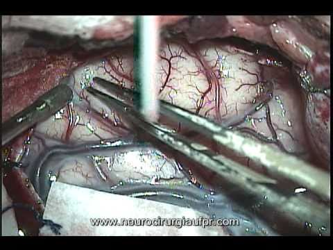 Epilepsy Surgery: Left Mesial Temporal Sclerosis Plus Calcified Lesion
