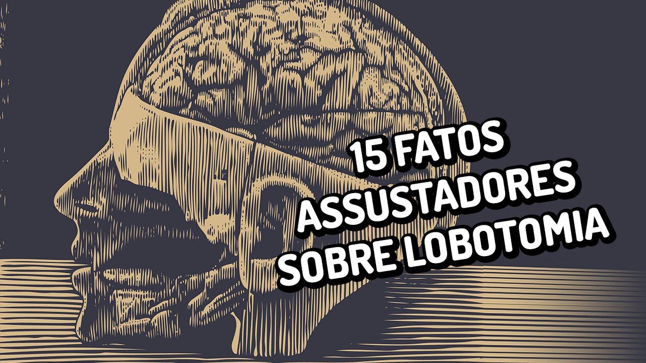 15 fatos assustadores sobre lobotomias