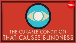 治療可能な失明の原因 ー アンドリュー・バストーラス