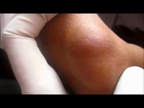 Elbow Cyst Excision
